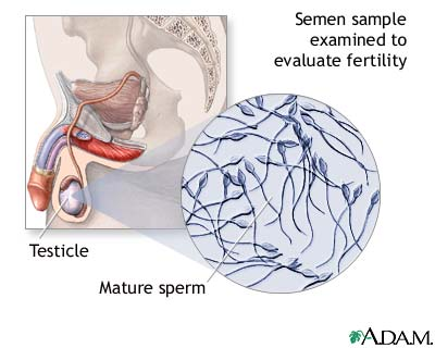 Sperm Diagram – Semen Analysis